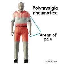 Obat Polimialgia Rematik Tradisional