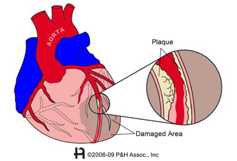 how to detect coronary artery disease