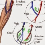 Dialysis Tip - arteriovenous fistula versus arteriovenous graft