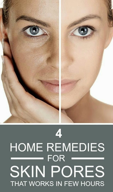 4 Home Remedies For Skin Pores That Works In Few Hours