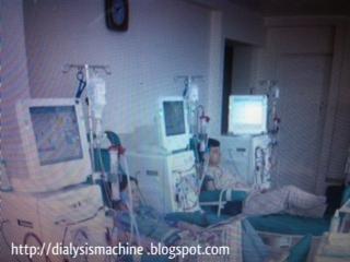 b braun dialysis machine cost