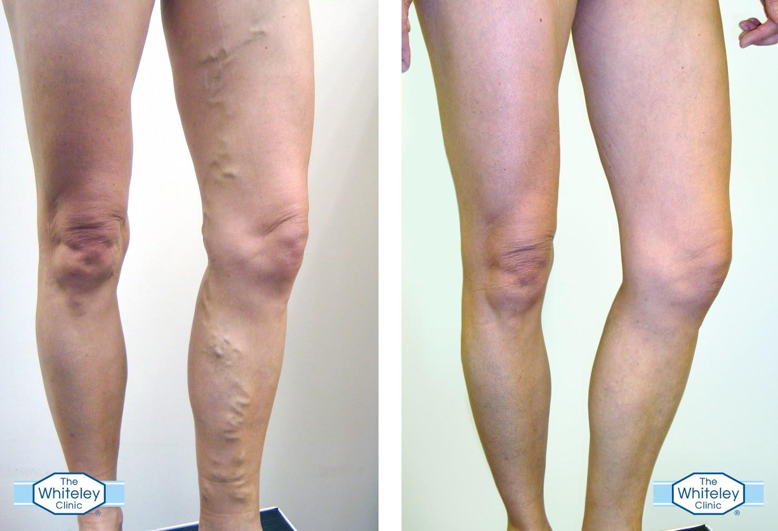 Prevention of varicose veins 27