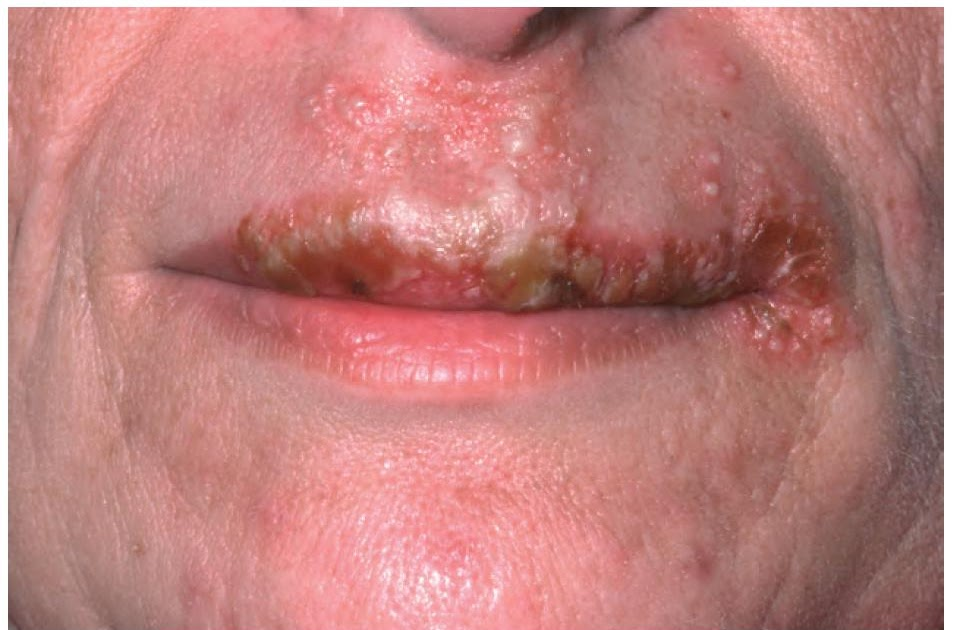 how to get rid of herpes on lip naturally