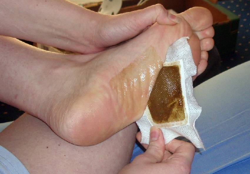 Detox Your Body Overnight with Homemade Foot Pads – Here's How!