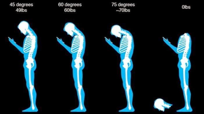 Mania Handphone : Awas Leher Anda Berubah Bentuk