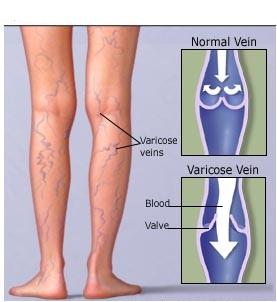 El tratamiento varikoza odessa