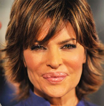 Lisa Rinna Before and After Lip Injections Gone Bad ...