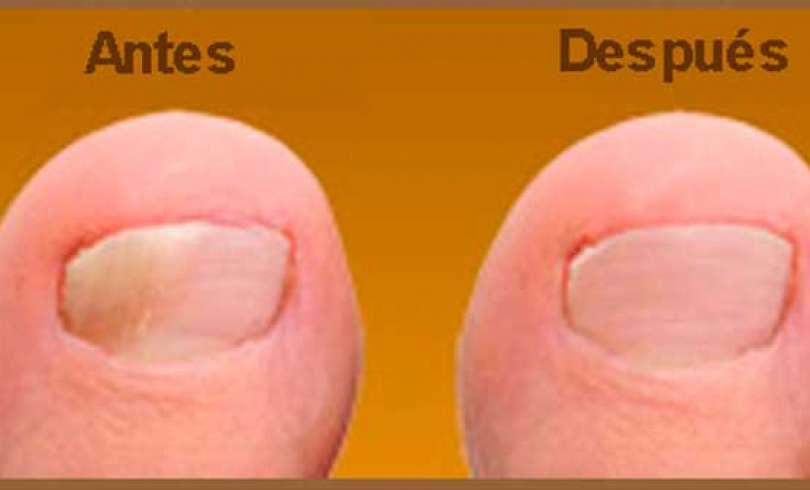 Ekzifin no ayuda el hongo de las uñas