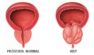 Tratament naturist hipertrofie benigna de prostata