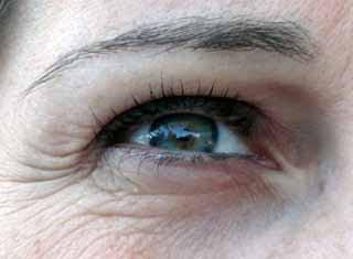 Migliore crema antirughe viso 2011, creme antiage per il viso, acido glicolico e acido ialuronico, trattamento contorno occhi per uomo e donna