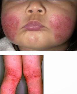 Boala Leiner-Moussous (eritrodermia descuamativa)