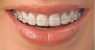 http://www.dentistinchennai.com/braces.php