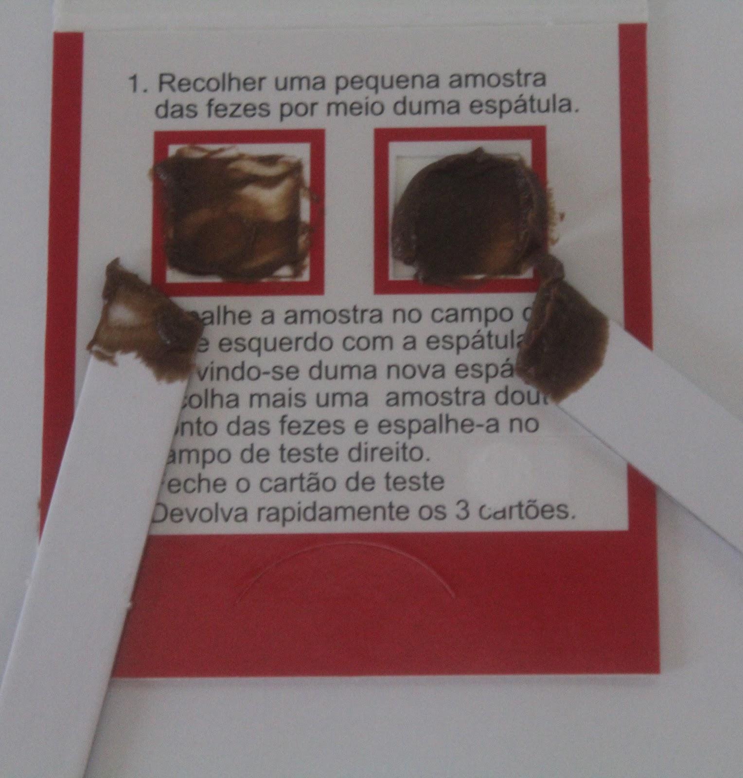 Dieta para fazer exame de sangue oculto nas fezes