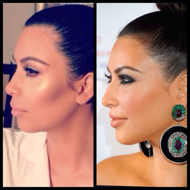 kim kardasian chin enhancement