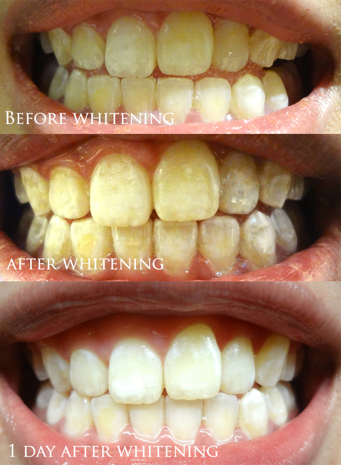 Simply Aesthetics LED Teeth Whitening Treatment Before and After Review Capitol Piazza Singapore