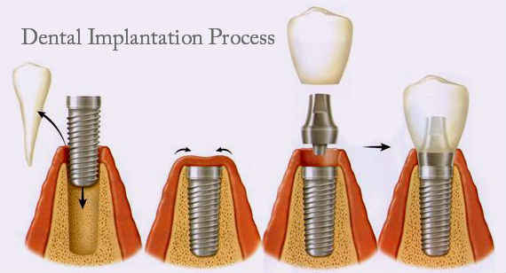 Denta Implantation process
