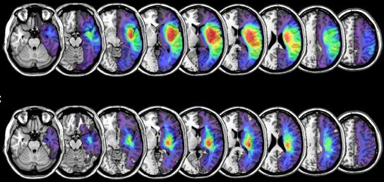 図:脳卒中マッピング