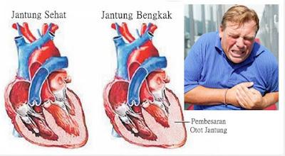 Tanda Gejala Penderita Jantung Bengkak