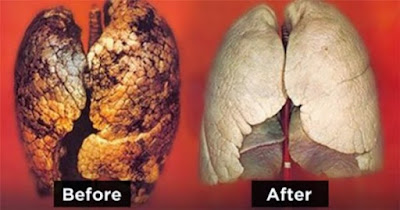 Best way to repair your lungs from smoking