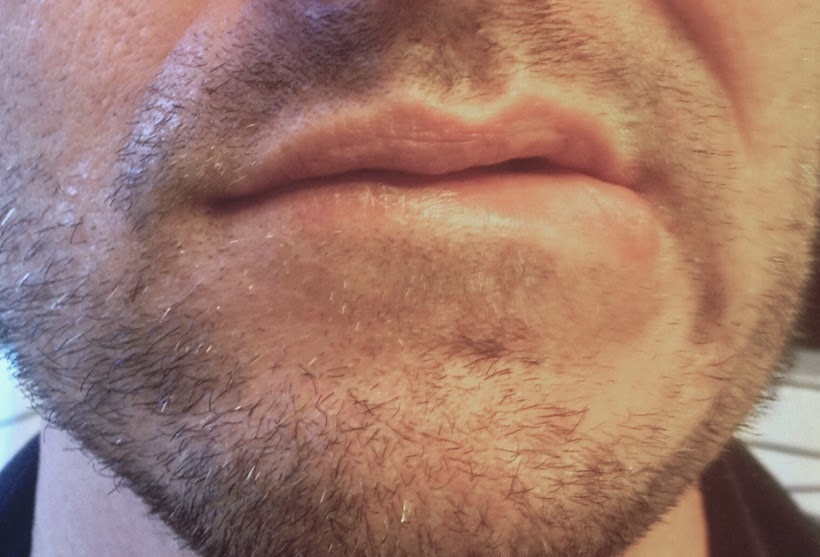 gay stubble