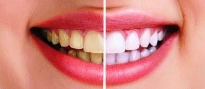 Cara Mudah Memutihkan Gigi Secara Alami