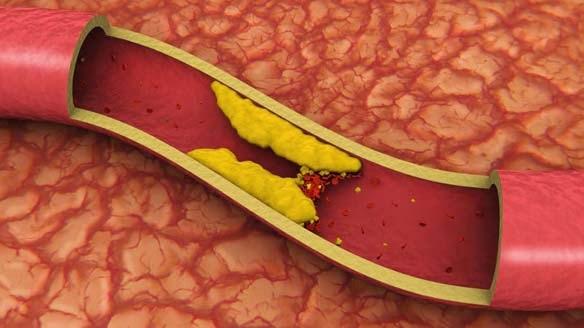 الكولسترول اسبابه و علاجه