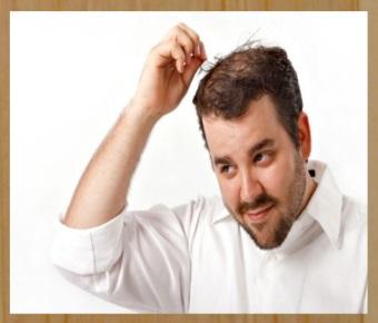tratamento caseiro para calvice masculina
