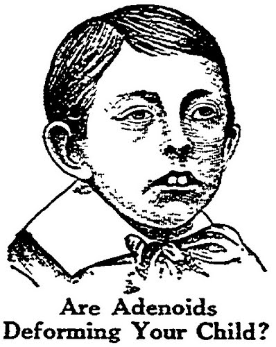 best way to take care of you: adenoids in children, Human Body