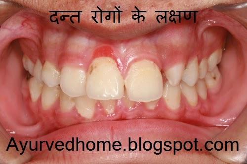 Dental Diseases Symptoms , दन्त रोगों के लक्षण , Daanto ki Beemariya