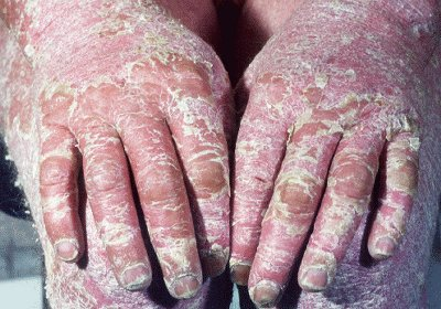 psoriasis and arthritis