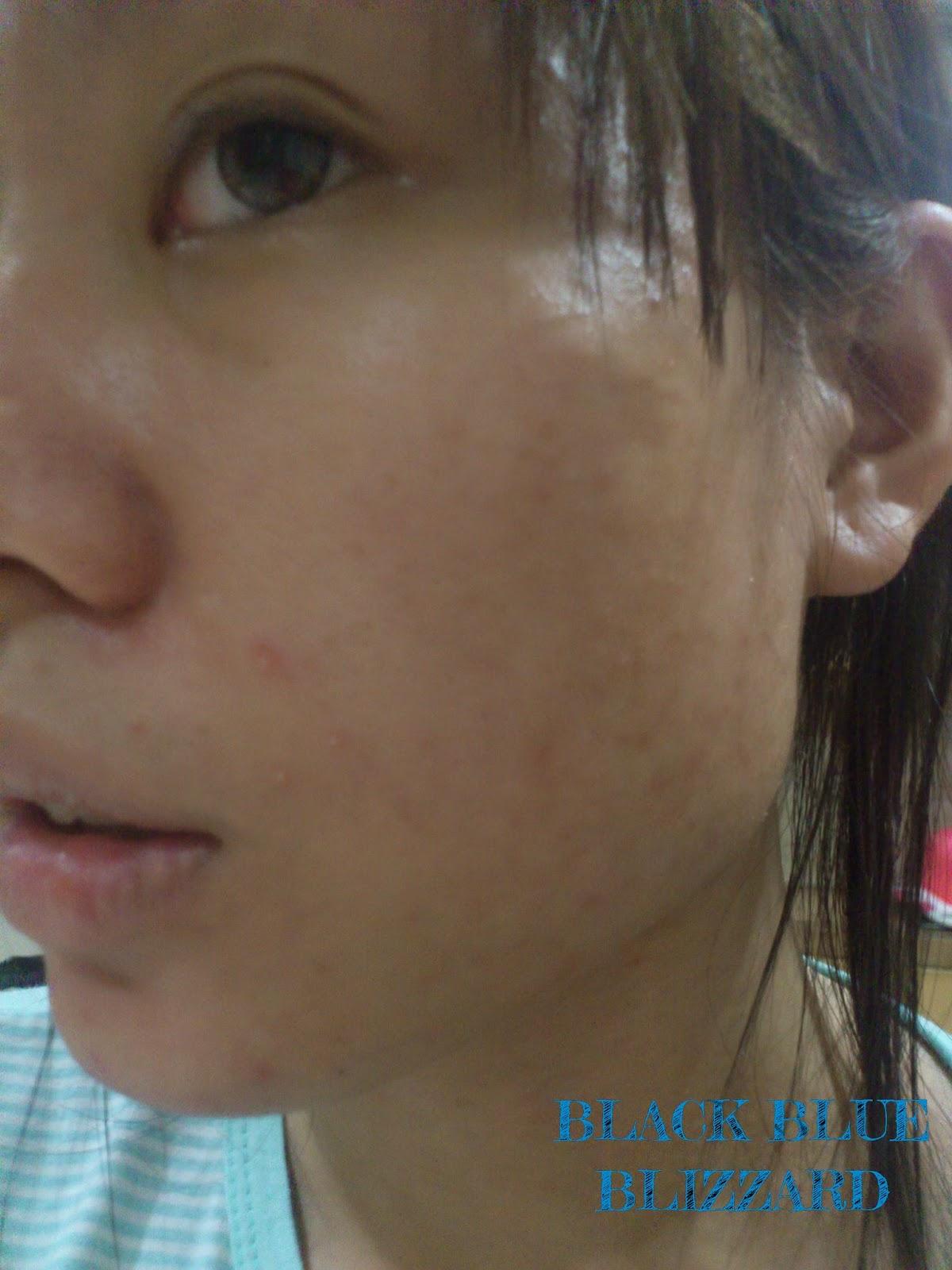 menard 6 color mask, menard facial salon indonesia, enard facial salon jakarta, menard clean pack, menard beauness, menard facial salon review, menard clean pack review