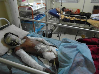 Bani Walid today: The shelling. Number of deaths and who died is whats not clear. Abdullah, 12, burnt after a missile exploded at home on Sunday in Bani Walid.