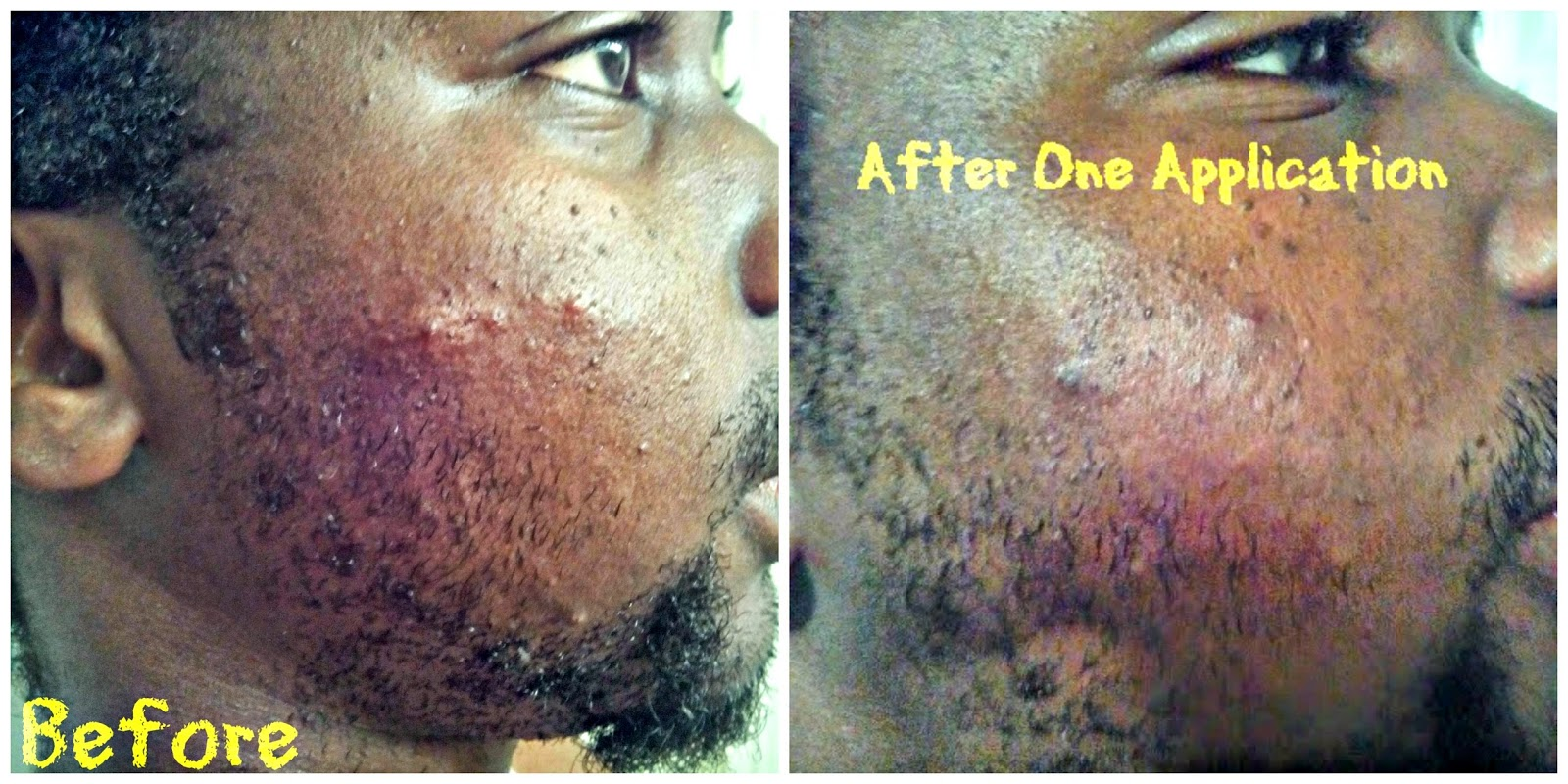 Apothederm, Skin Care, Science, Acne, Clarifying, Treatment, Acne treatment, acne treatment results, acne before and after,