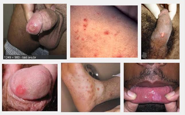 Jual Obat Sipilis Herbal Untuk Pria