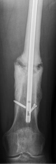 Open Femur Fracture