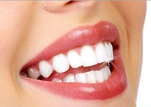 सफ़ेद चमकदार दांतों के घरेलू राज