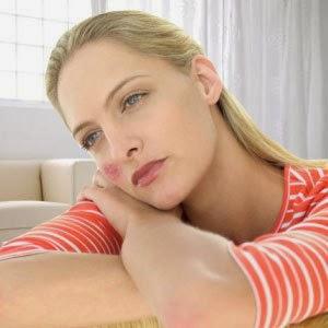 Waspadai Penyebab Dan Cara Mencegah Penyakit Lupus