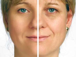 Cara alami menghilangkan kerutan di wajah