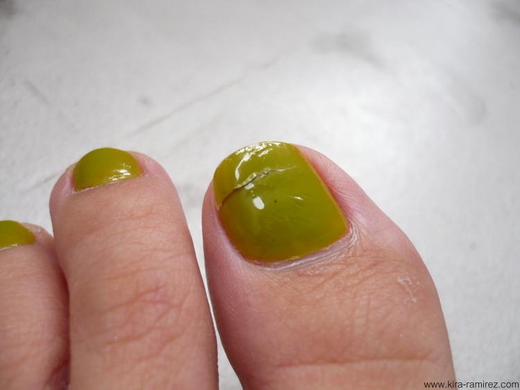 toenails splitting vertically