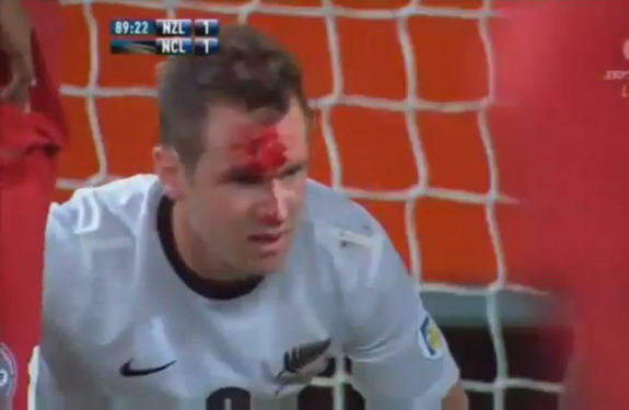New Zealand striker Shane Smeltz has his face busted open from an upraised New Caledonian boot