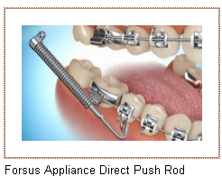 Gilbert AZ Dental Braces Appliance