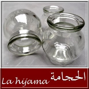 La hijama ou l 39 incisioth rapie saign e par ventouse - Point de saignee ...