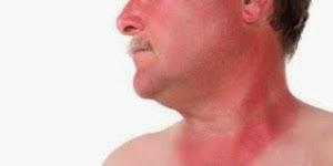 Bahaya Kanker Kulit dan Indikasinya