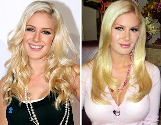 Chatter Busy: Celebrity Plastic Surgery Before Age 25 Breast Implants After Aging