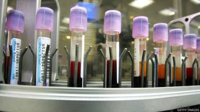 Deteksi kanker melalui tes darah