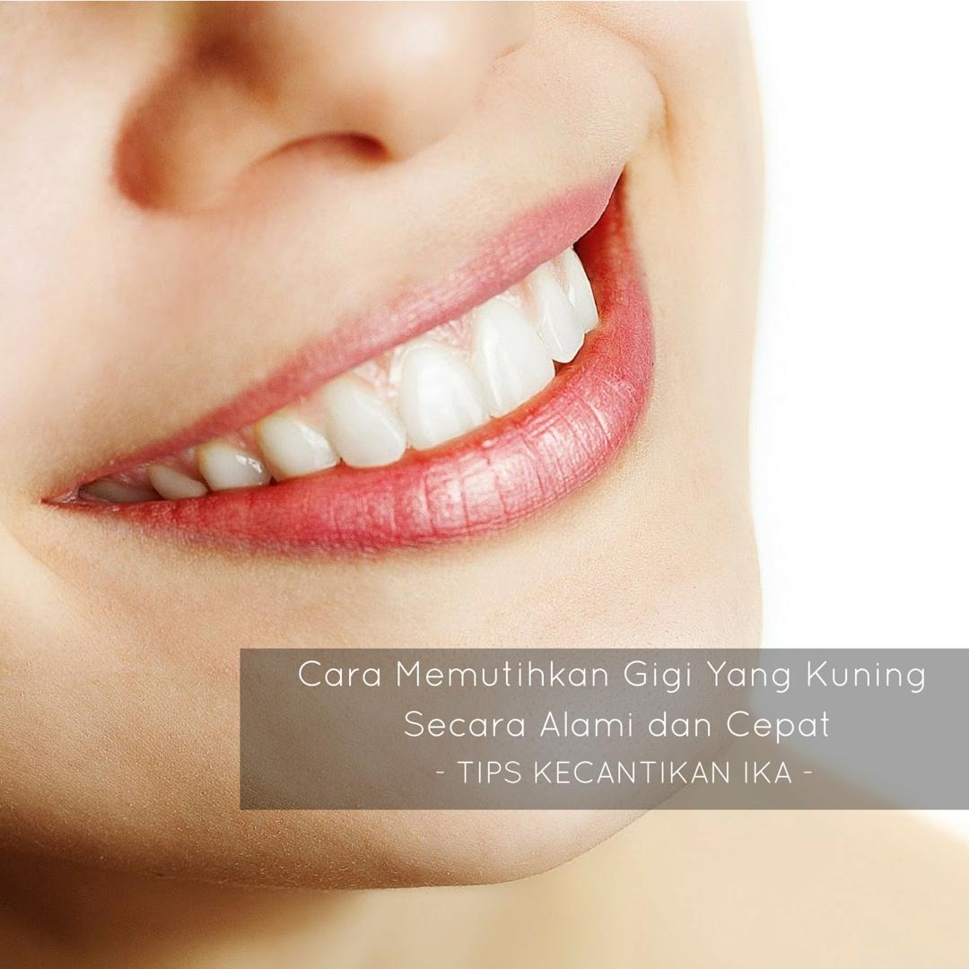 Cara Memutihkan Gigi Yang Kuning Secara Alami Dan Cepat Tips