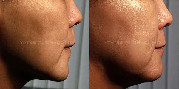 塑顏電波(Thermage DC facial sculpting)治療後會產生輕微暫時性的浮腫,這是正常的現象