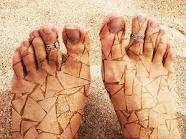تشققات القدمين ..الأسباب والعلاج وكيف يمكن تفاديها ؟