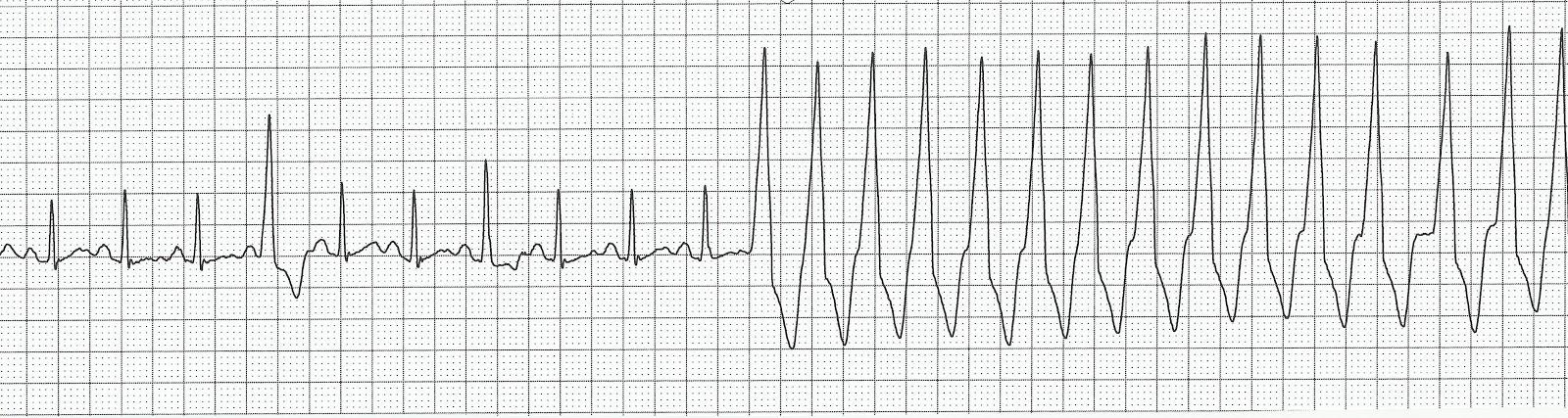atrial tachycardia changing to multifocal atrial tachycardia cParoxysmal Atrial Tachycardia Vs Sinus Tachycardia