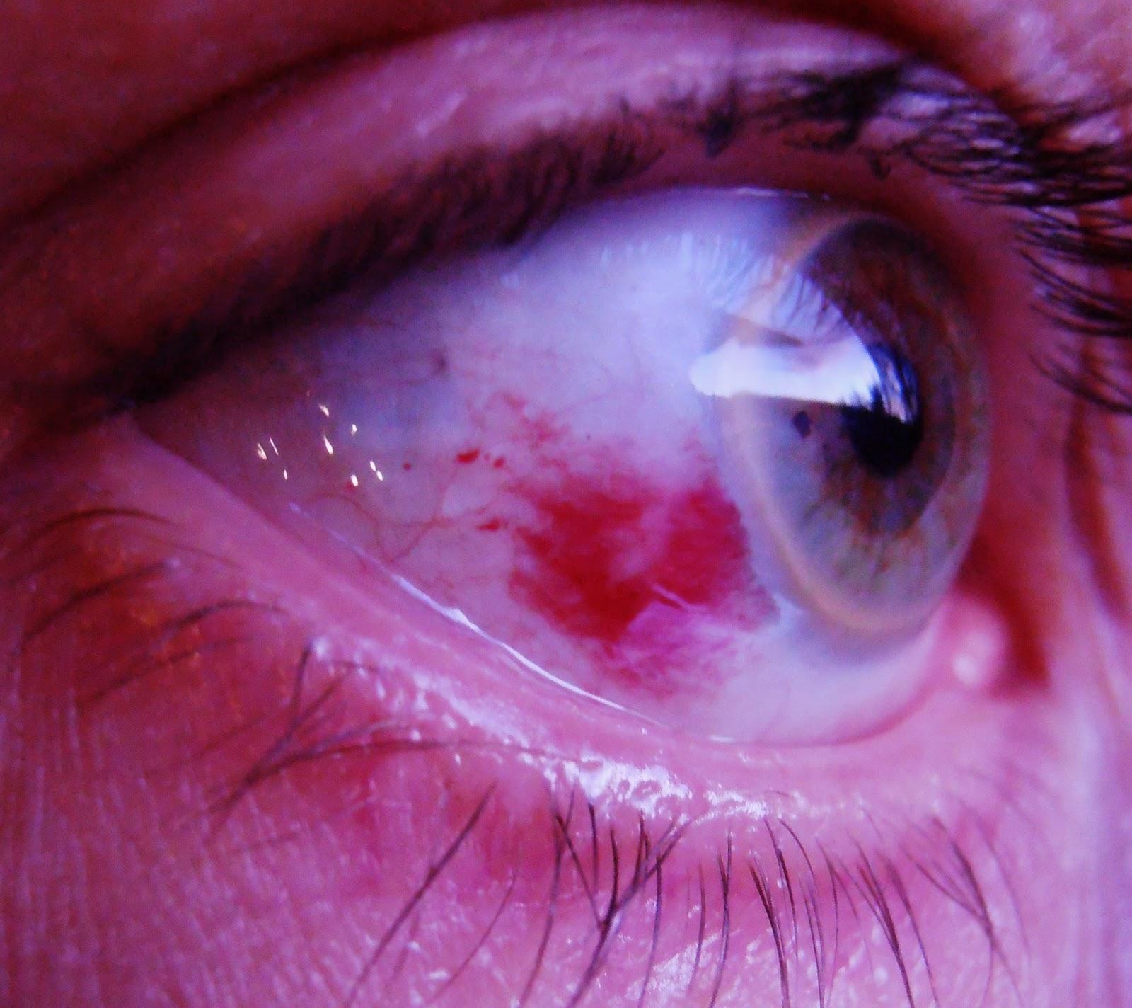 röd i ögat länge